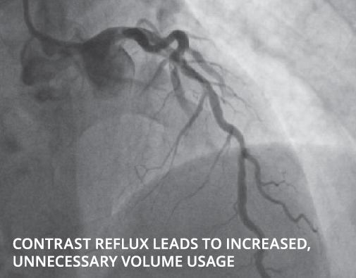Contrast reflux leads to increased, unnecessary volume usage